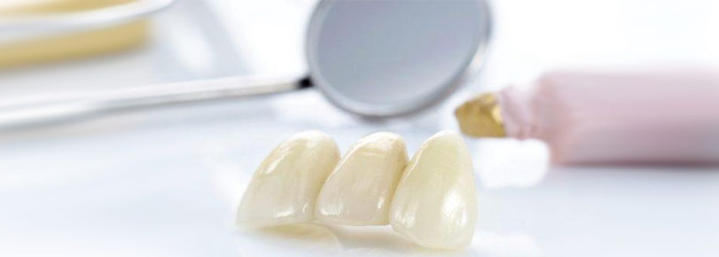 Ceramic crowns and inlays, фото