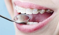 Сколько стоит поставить брекеты на зубы: как сэкономить и получить за них налоговый вычет
